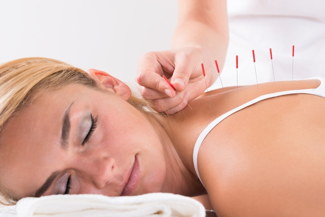 Acupuncture - Causes, Symptoms and Its Treatment, Acupuncture