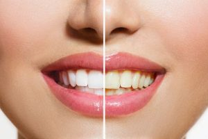 Reasons to Teeth Turning Yellow, dental care