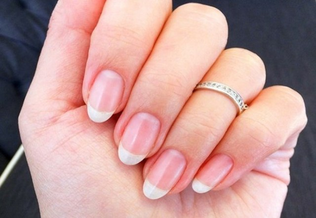 Get Rid of Dry Skin around Nails